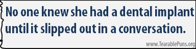 No one knew she had a dental implant